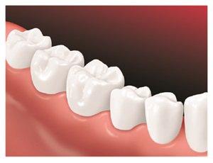 Diagram of teeth after bridge is placed