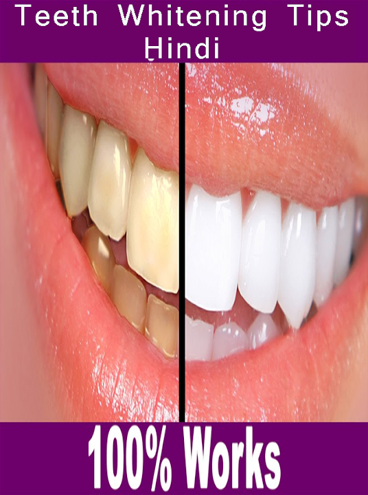 Download Teeth Whitening Guide In Hindi Free For Android Teeth