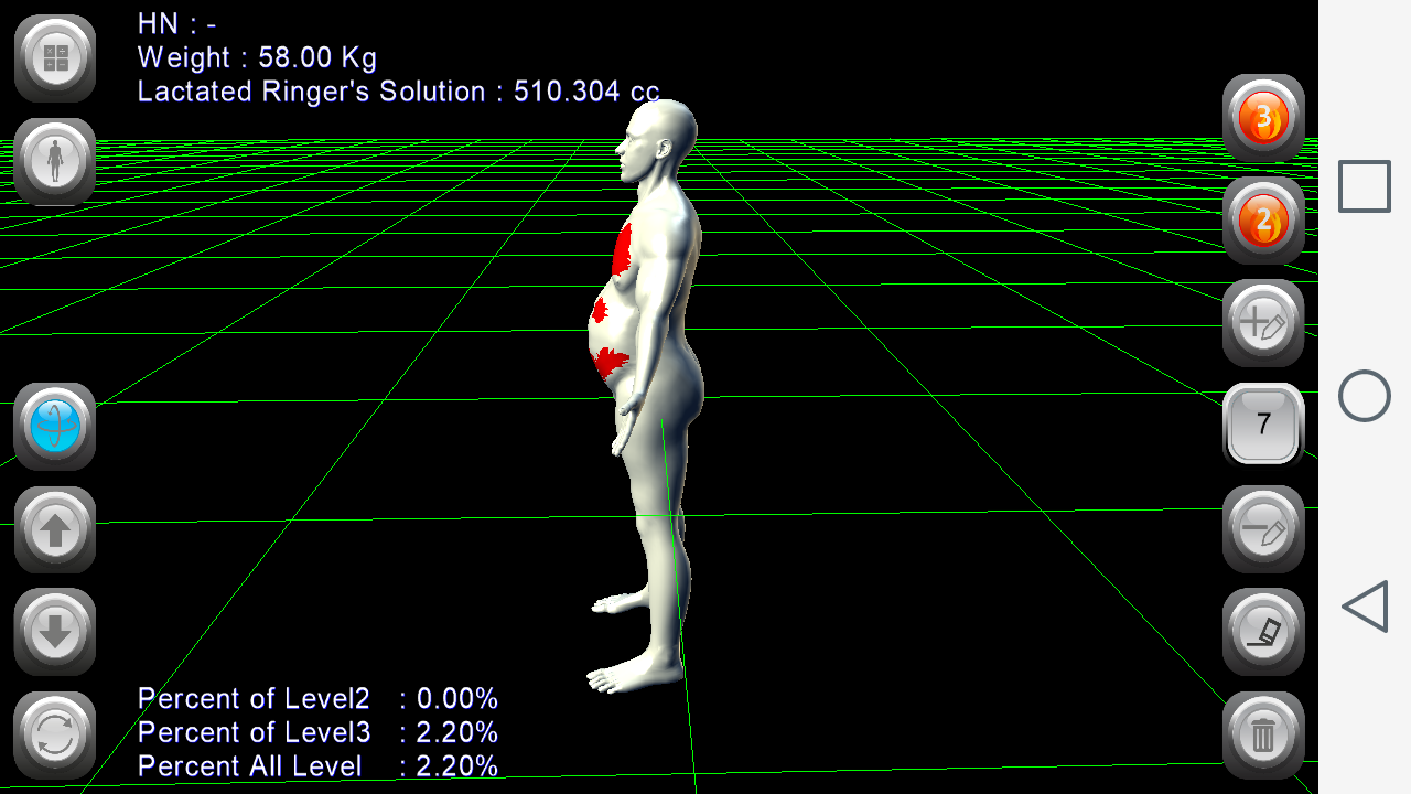 3D Burn Resuscitation- screenshot