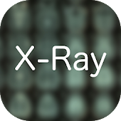 X-Ray Differential Diagnosis