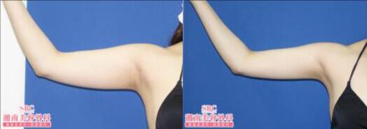 ライポマティック脂肪吸引(上腕+肩+肩甲骨横)術後6ヶ月