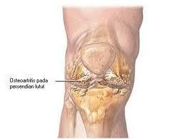 Nutrisi Herbal Untuk Penderita Penyakit Osteoarthritis