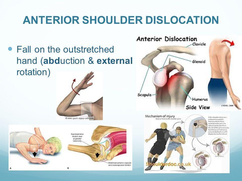 anterior shoulder dislocation vs posterior - Google Search | Shoulder  dislocation, Dislocation, Perfect eyebrow makeup