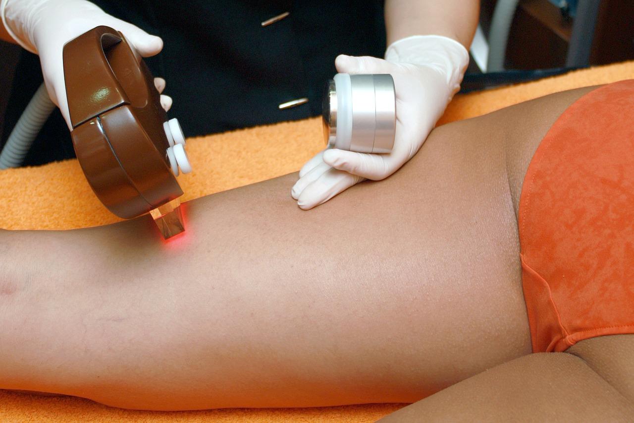 La depilación laser es la mejor manera de eliminar los pelos encarnados