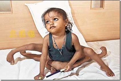 Lakshmi tatma, india girl with 8 limbs