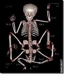 Lakshmi tatma two parasitic twin bodies x ray