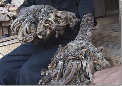 Tree man 'who grew roots' may be cured1