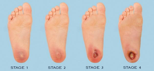 Image result for diabetes foot ulcer