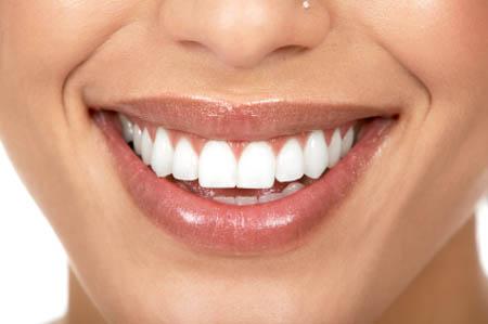 牙齒美白 心幸福 婚禮小物