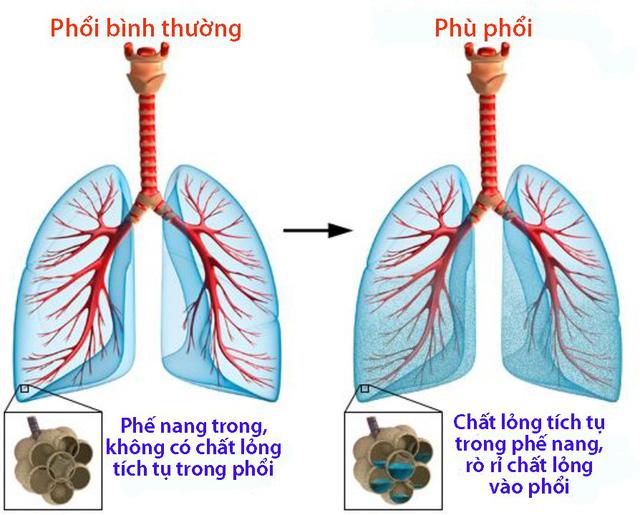 Hình ảnh so sánh phổi bình thường và phù phổi cấp
