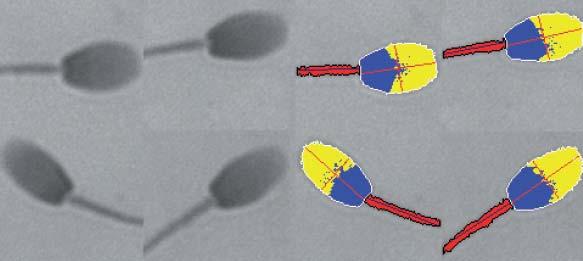 Spermatozoïdes et leurs images obtenues après coloration