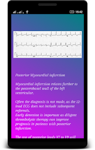 ECG Interpretation screenshot 5