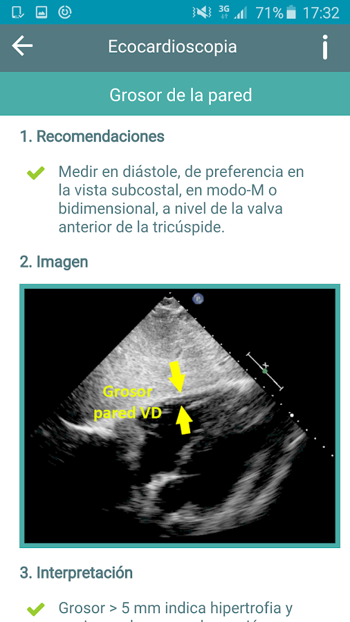 Ecocardioscopia- screenshot