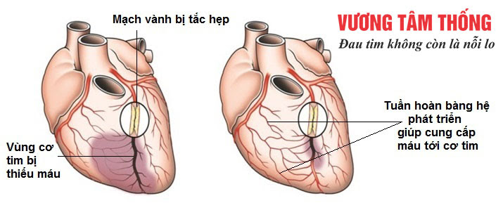 Nhánh tuần hoàn bàng hệ phát triển khi bị tắc hẹp động mạch vành