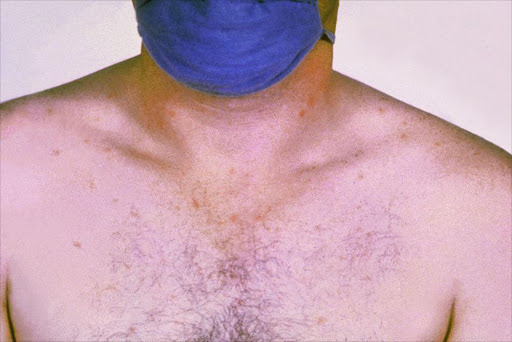 Rose spots on the chest of a patient with typhoid fever due to the bacterium Salmonella typhi. Symptoms of typhoid fever may include a sustained fever as high as 103° to 104° F (39° to 40° C), weakness, stomach pains, headache, loss of appetite. In some cases, patients have a rash of flat, rose-coloured spots.