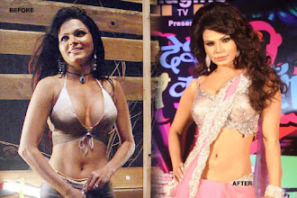 """Photo: Rakhi Sawant admits that she had gone for breast implants. """"Since physical beauty works like a magic pill in this glamour world, I decided to go under the knife and get silicon implants,"""" she says. Rakhi feels such enhancements helped her fetch good roles."""