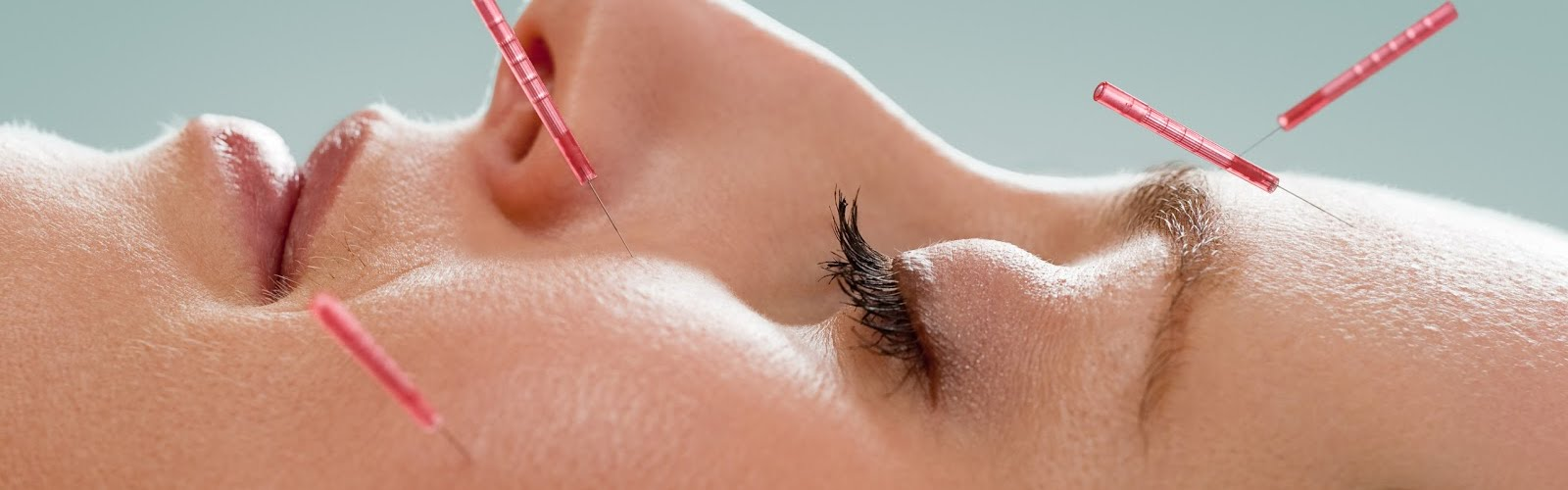 a lady with acupuncture needles in her face