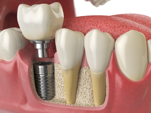Image result for tuổi thọ của implant