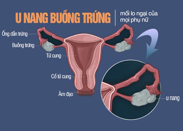 Nguyên nhân triệu chứng và biện pháp chẩn đoán điều trị u nang buồng trứng - Ảnh 1