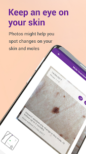Miiskin - Melanoma Skin Cancer- screenshot thumbnail