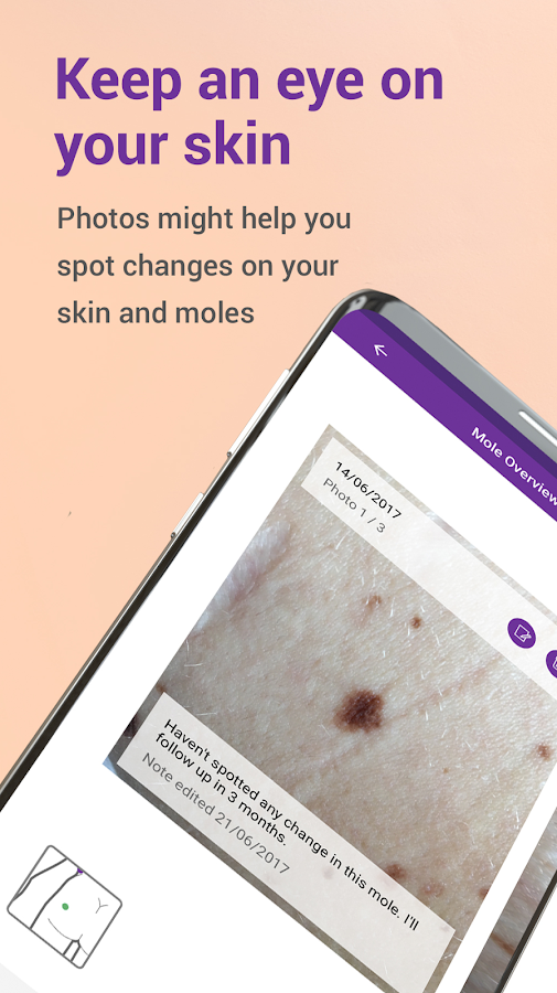 Miiskin - Melanoma Skin Cancer- screenshot