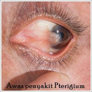 Cara Menyembuhkan Penyakit Mata Pterigium Secara Alami Dan Tanpa Operasi Untuk Anak & Dewasa