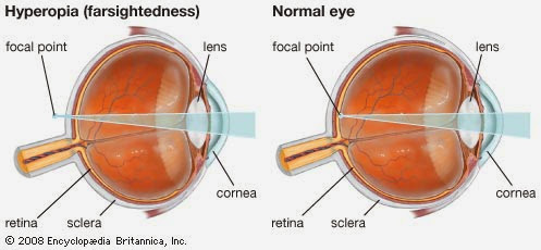 Suplemen Mata Untuk Rabun Dekat (Mata Jauh)
