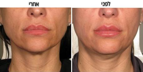 תמונות לפני ואחרי להמחשה, תוצאה האולטימטיבית תוכלו לראות לאחר כשלושה חודשים