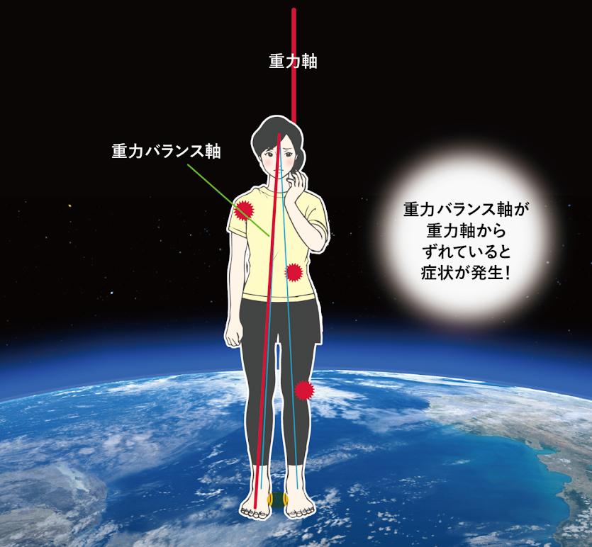重力バランス軸のずれ