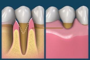 Чем опасен клиновидный дефект зубов