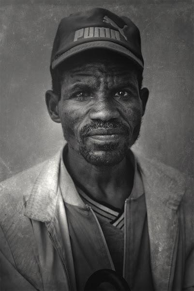 Photo: Cataract patient Ethiopia