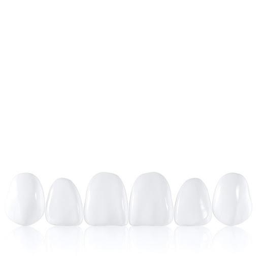 facetas cerâmicas estética dentária