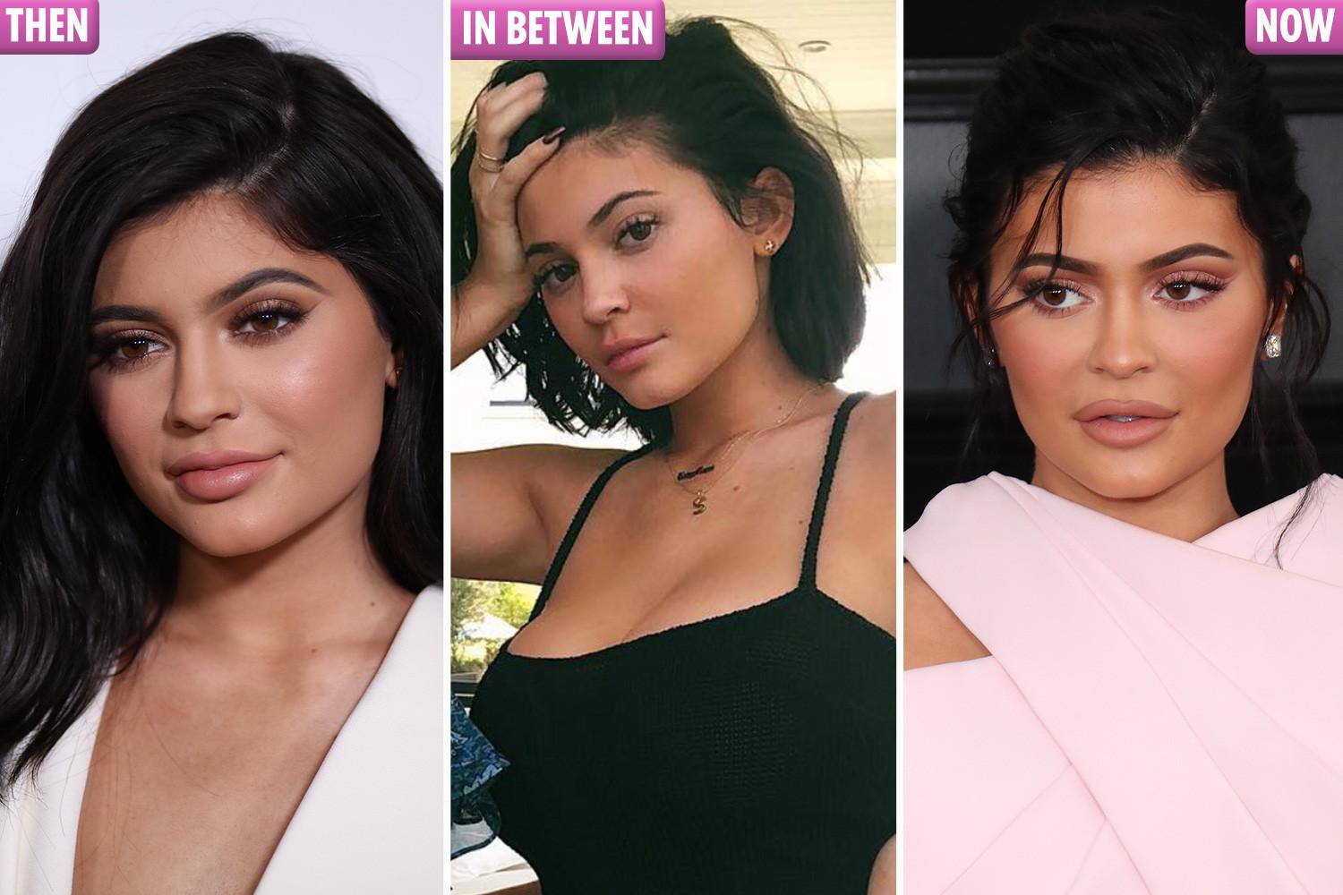Talking about her lip fillers, Kylie Jenner says: 'I went too far. It was very painful'