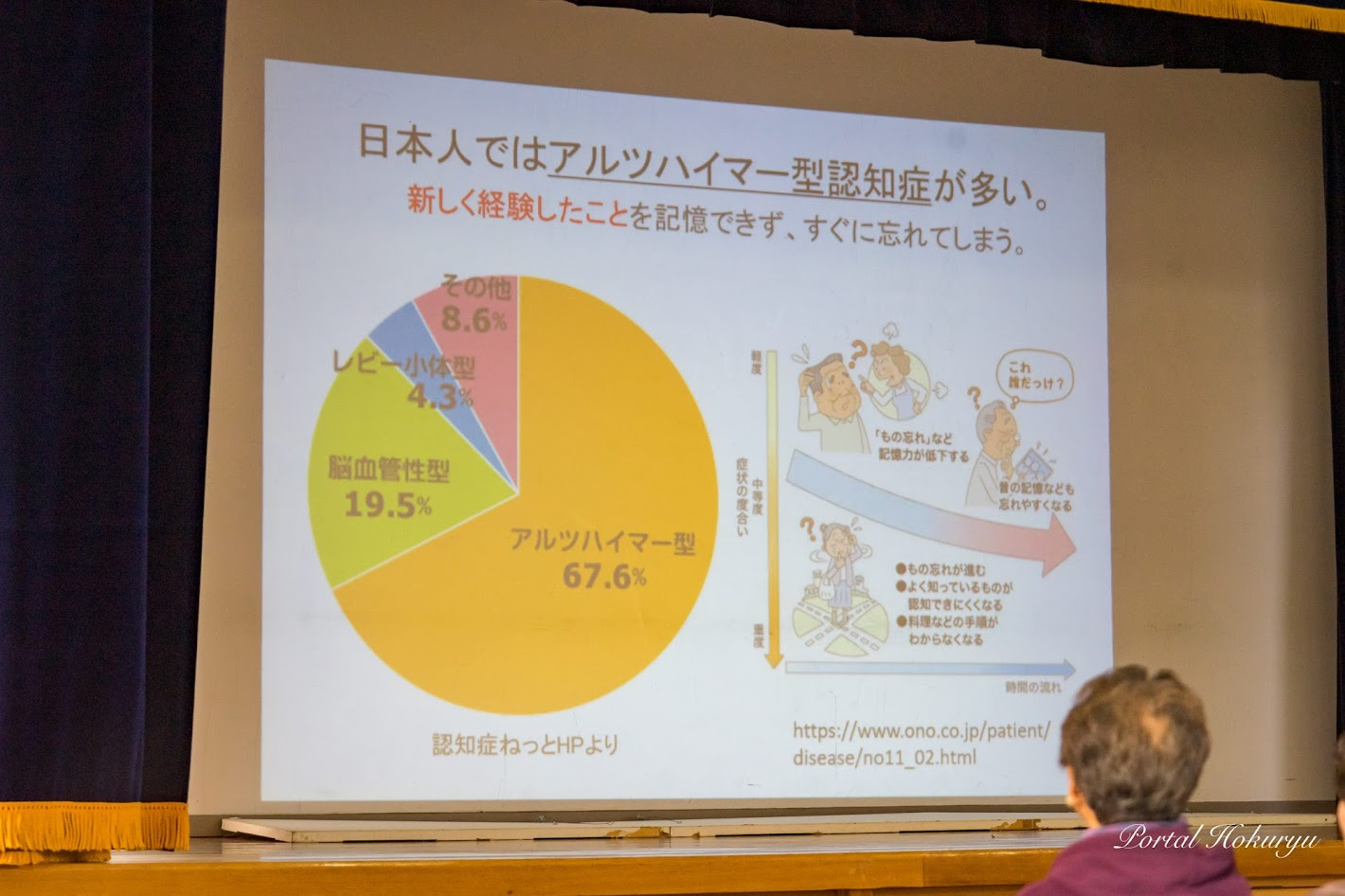 日本人ではアルツハイマー型認知症が多い