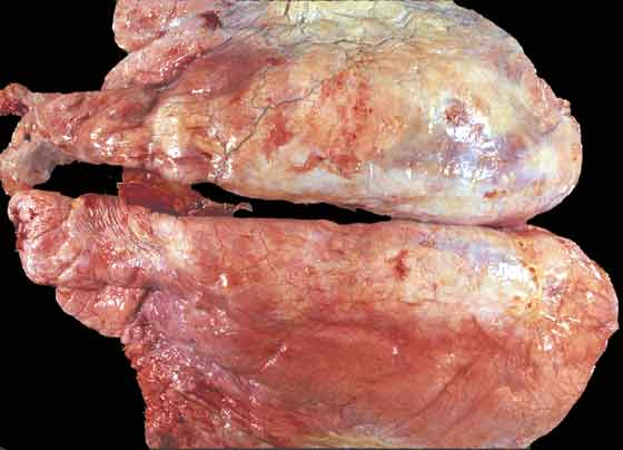 Chronic pleural scarring without adhesions to the thoracic wall.