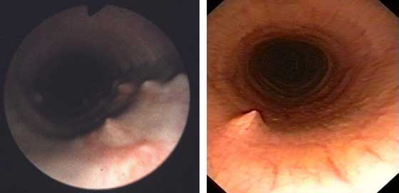 Granulomatous nodules (spikes) in the proximal tracheal lumen.