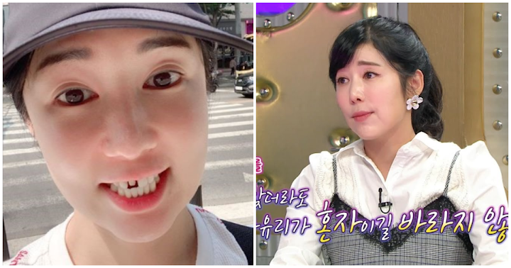Sayuri Just Lost Her Front Teeth Veneers but She's A-Okay