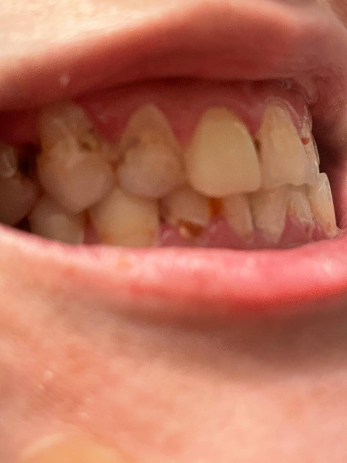 Teeth of a bulimic
