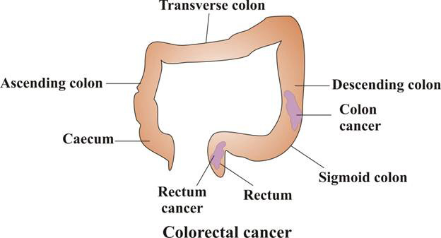 http://cancer-treatment-madurai.com/types-of-cancer-colon-and-rectal-cancer.php