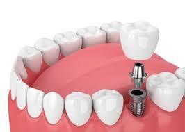 Implant crown - DentCare Dental Lab