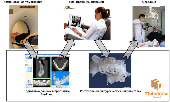 3D печать в медицине: имплантация зубов