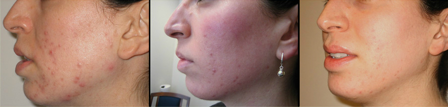 bluemd user documented her progress while using bluemd in treating pimples and acne