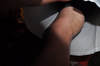 Photo: RARA van wie zijn deze benen