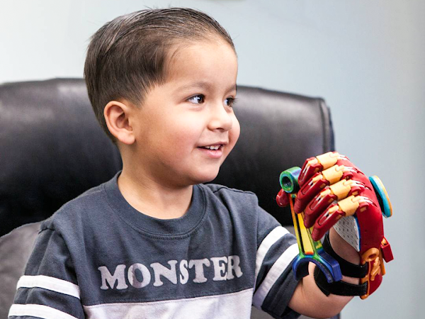 Claws for Carter recipient showing his 3D printed limb