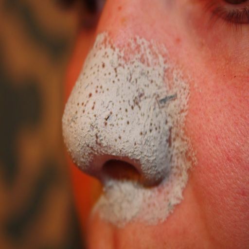 Blackheads On Nose Solution