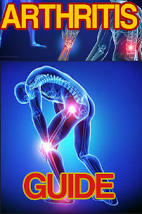 Arthritis Guide - náhled