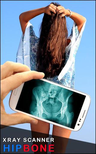 X射线髋关节骨 Prank
