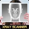 Xray Camera
