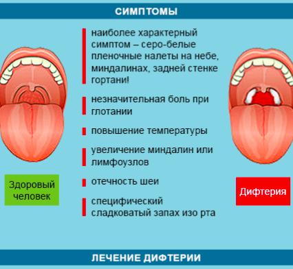 лечение дифтерии