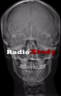 RadioXtudy- screenshot thumbnail